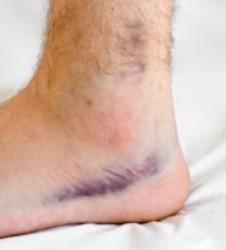 ankle bruise
